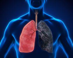 Mobilní aplikace LungScreen pomáhá odhalit rakovinu plic