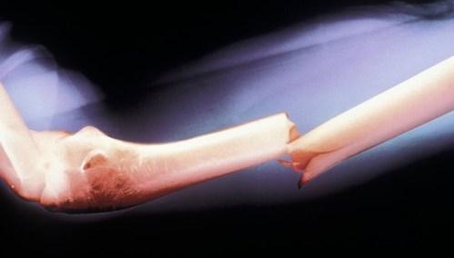 Bude snadné slepit kosti?