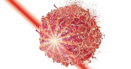 Laser vyhledá a zničí nádorové buňky
