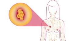 Projevem rakoviny prsu nemusí být jen bulka