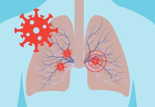 O postcovidové pacienty budou od února pečovat plicní lékaři