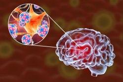 Zimní měsíce jsou k očkování proti klíšťové encefalitidě ideální