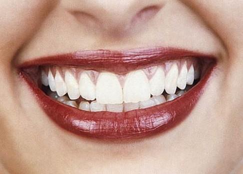 Nová metoda ústní hygieny: masáž zubů