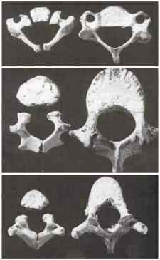 Vertebrae age 1 and 6 rear facing