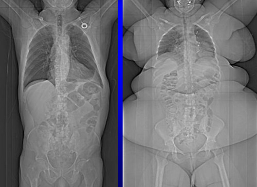 X-Ray of an obese individual compared to the X-ray of an average individual (source)