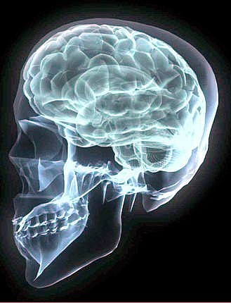 X-ray: human skull, left side of, jaw, teeth, crainum and convoluted brain are visible in whitish-blue light against black background.