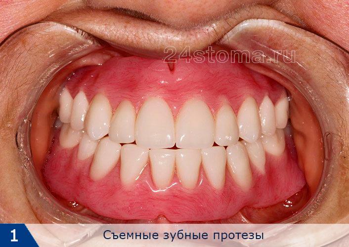 چه دندان ها بهتر است پلاستیک یا سرامیک را وارد کنید