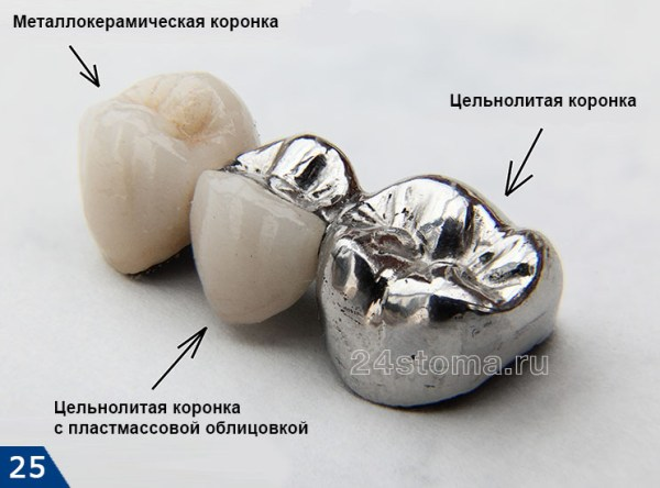 Металлокерамическая коронка – цена, фото, виды ...