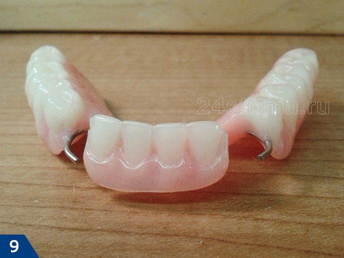 پروتز پلاستیکی قابل جابجایی با عدم وجود جزئی دندان ها (از طرفی که به غشای مخاطی تختخواب پروتز می شود)