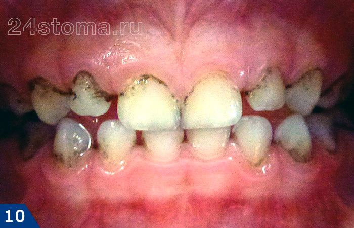 Tandkleuring Vanwege de spoeling van de mondholte met een oplossing van chloorhexidine (er stond alleen die oppervlakken waarop er een bacteriële film is)