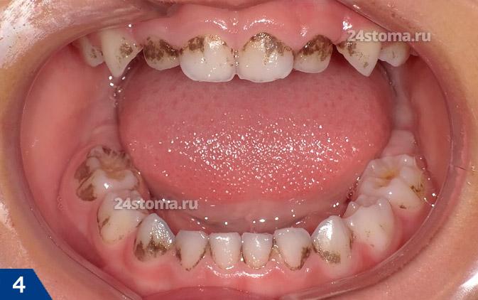 Donkere overval op de tanden (op het tandwieloppervlak van de onderste tanden)
