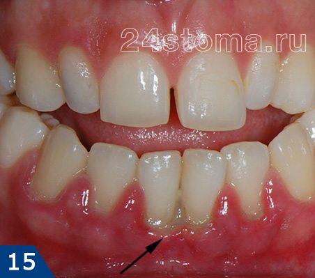 Wensenの慢性潰瘍性壊死性歯肉炎
