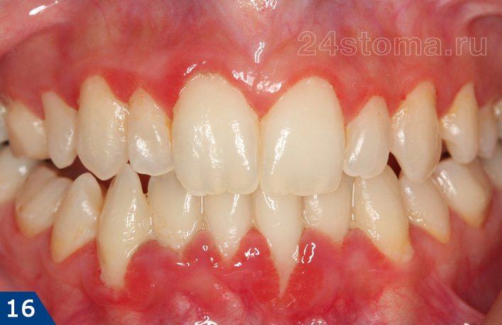 肥大性歯肉炎の電子メール形状