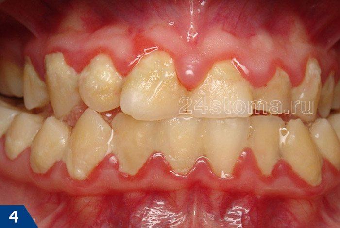 Gingivitis حاد Catarrhal (خوشه های عظیم یک پلاک دندان نرم در گردن دندان ها، قرمزی تیز لبه لبه)