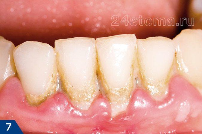 柔らかい微生物プラークのクラスター、ならびに歯の首の部分鉱化された微生物プラーク