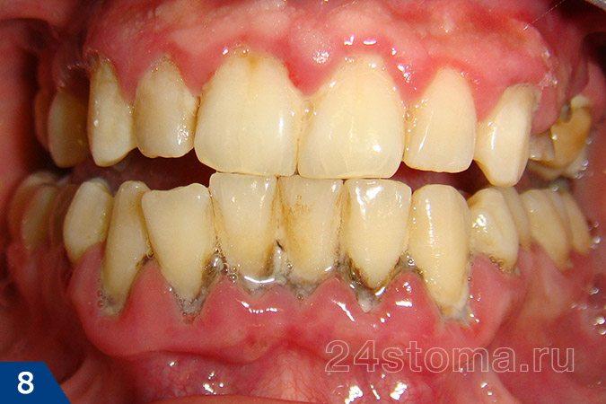 تعداد زیادی از رسوبات دندانی جامد در گردن اکثر دندان ها
