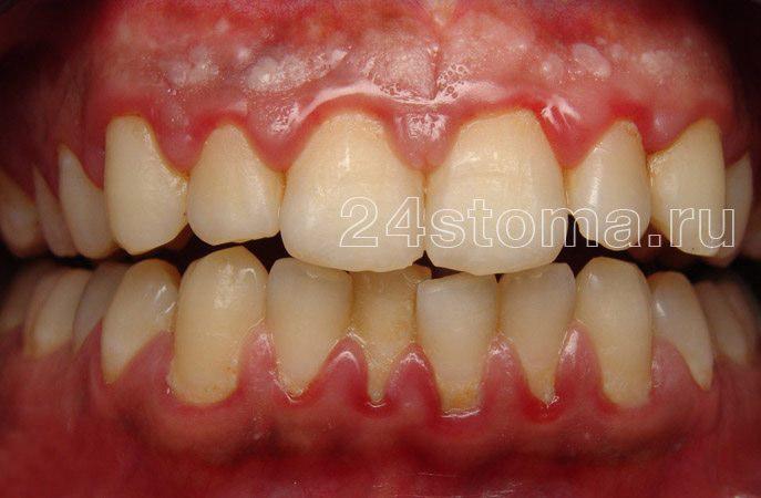 Clusters de una placa microbiana suave en el cuello del cuello de los dientes (hay síntomas de inflamación de las encías - gingivitis)
