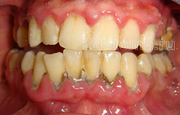 Твердые над и поддесневые зубные отложения в области нижних зубов (имеются симптовы воспаления десен - пародонтита, включая гнойное отделяемое из пародонтальных карманов)