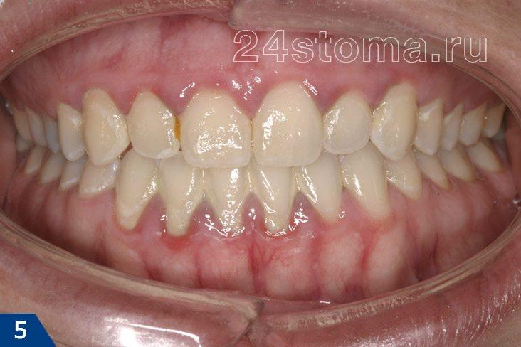 Krónikus gingivitis (éles kék szinuszosság és az íny duzzanata, a fogászati betétek illeszkedése)