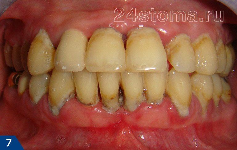 Periodontitis crónica (grupos de placa microbiana blanda, sobre y aptitud de sedimentos dentales, atrofia de goma ...)
