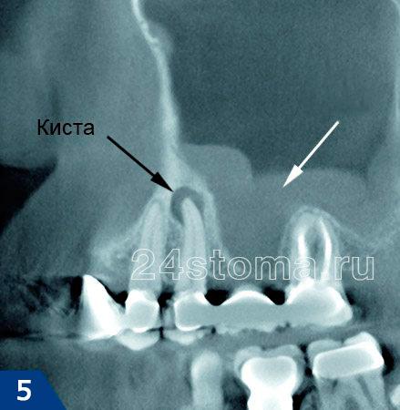 På toppen av roten på 5 tand finns ett inflammatoriskt fokus (radikal cyst). Vit pil visar inflammatoriska förändringar i Faimore sinus