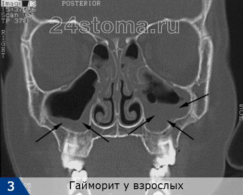 Dubbelsidig hymorit. Slimmembranet är skarpt förtjockat i sinus, slemhinnan är skarpt förtjockat, det är tydligt tydligt sett att sinusen är fylld med pus och / eller polyper.