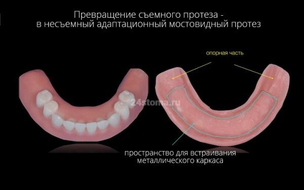 All-on-4 имплантация в Москве – все на 4 имплантах, цена ...