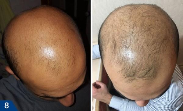 Мезотерапия для волос и кожи головы – отзывы, фото до и ...