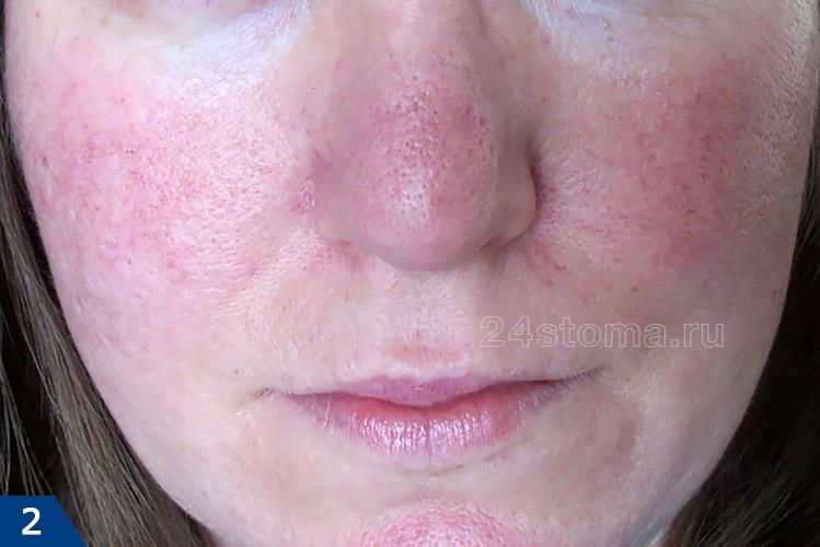 Розацеа на лице (начальная стадия эритематозно-телеангиэктатической формы)