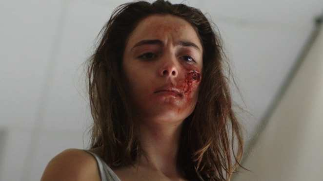 Justine stands, with a bloody wound on her cheek