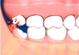 wisdom teeth removal recovery tips 265article.com