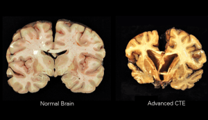 Normal brain compared to brain with CTE