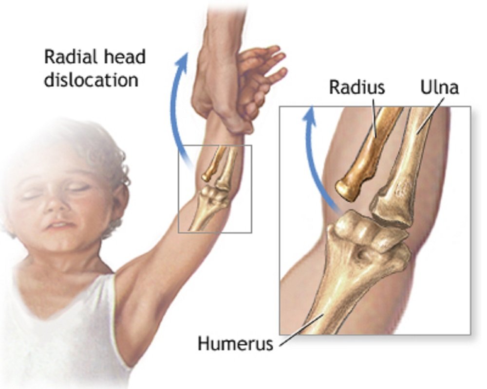 Pulled elbow (Radial head Subluxation) - 2LearnIslam