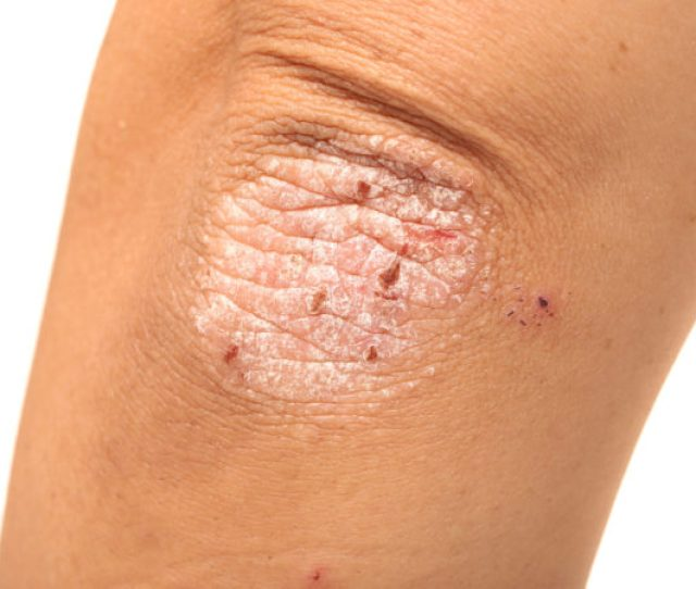 Things You Should Know About Treatment For Psoriatic Arthritis