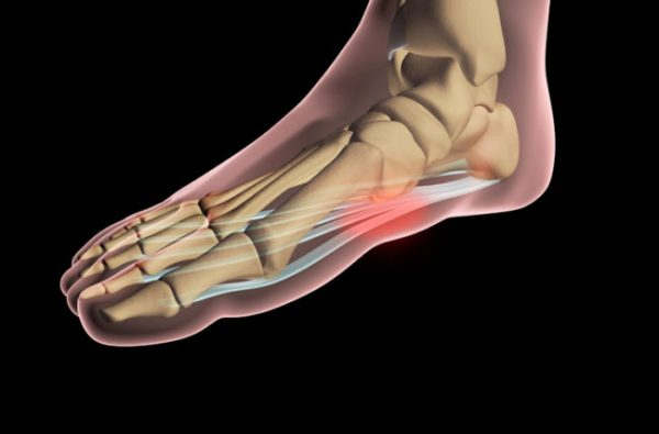 Chronic Heel Pain? 4 Simple Fixes for Your Plantar ...