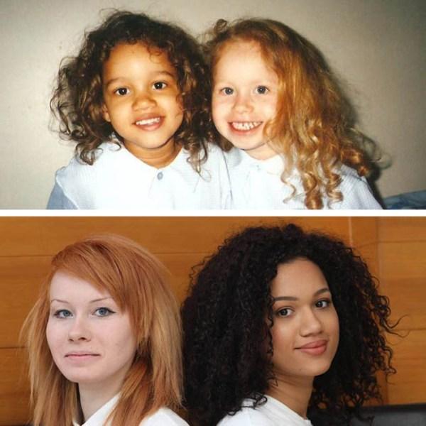 Эти сестрыблизнецы родились совершенно разными И вот как