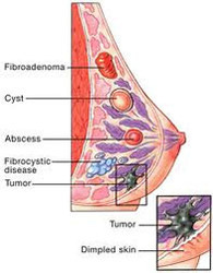 Gynaecological Disease Fibroadenoma Breast Fibrocystic