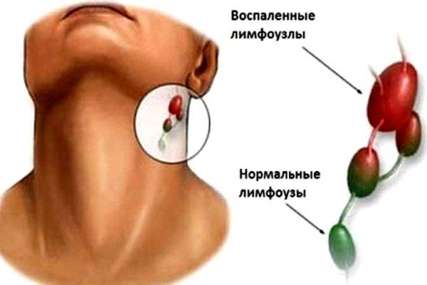 На шее воспалился лимфоузел: как лечить в домашних условиях