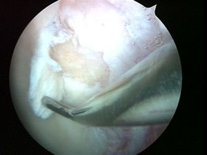 hip-chondral-injuries