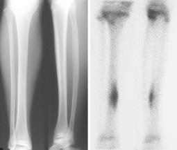 shin-stress-fracture