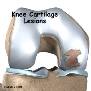 knee-cartilage-lesions