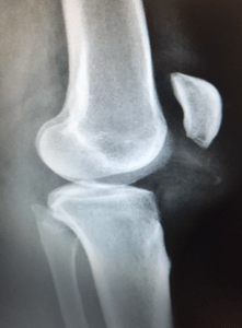 patella-alta - high-patella