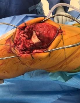 patellar-tendon- quadriceps tendon- repair-1