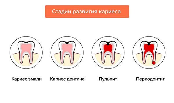 Чем отличаются пульпит и кариес ЗубнойМастер