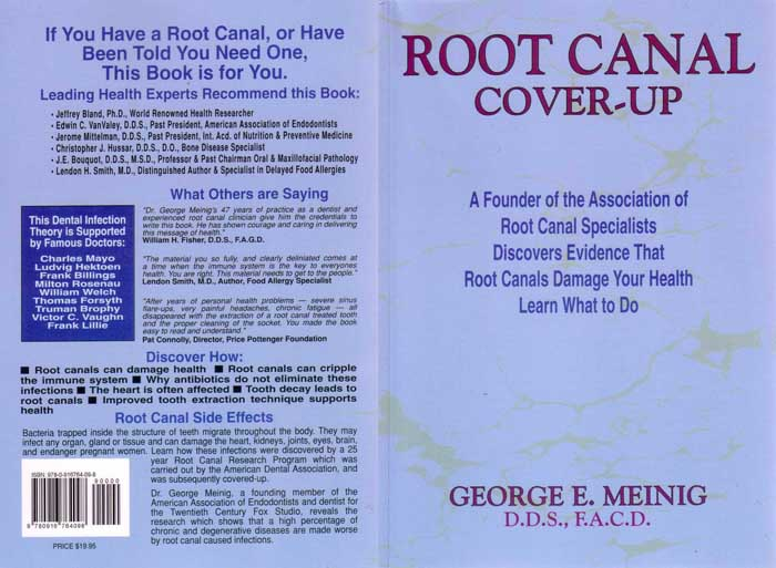 ROOT-CANAL-COVER-UP