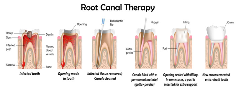 rootcanal2-1