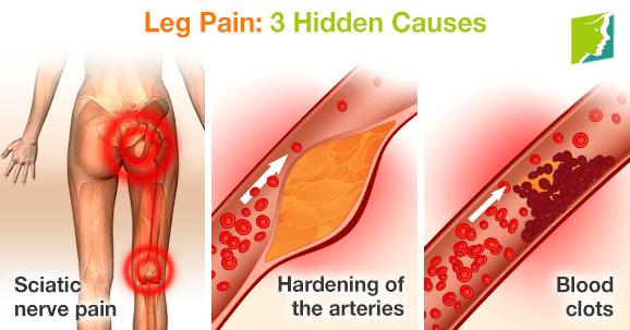 Leg Pain: 3 Hidden Causes