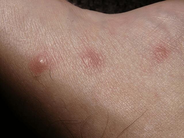 brotoeja bolinhas vermelas no corpo