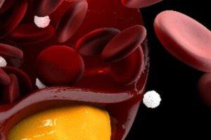 """5 τροφές που """"ρίχνουν"""" την υψηλή χοληστερόλη (εικόνες)"""