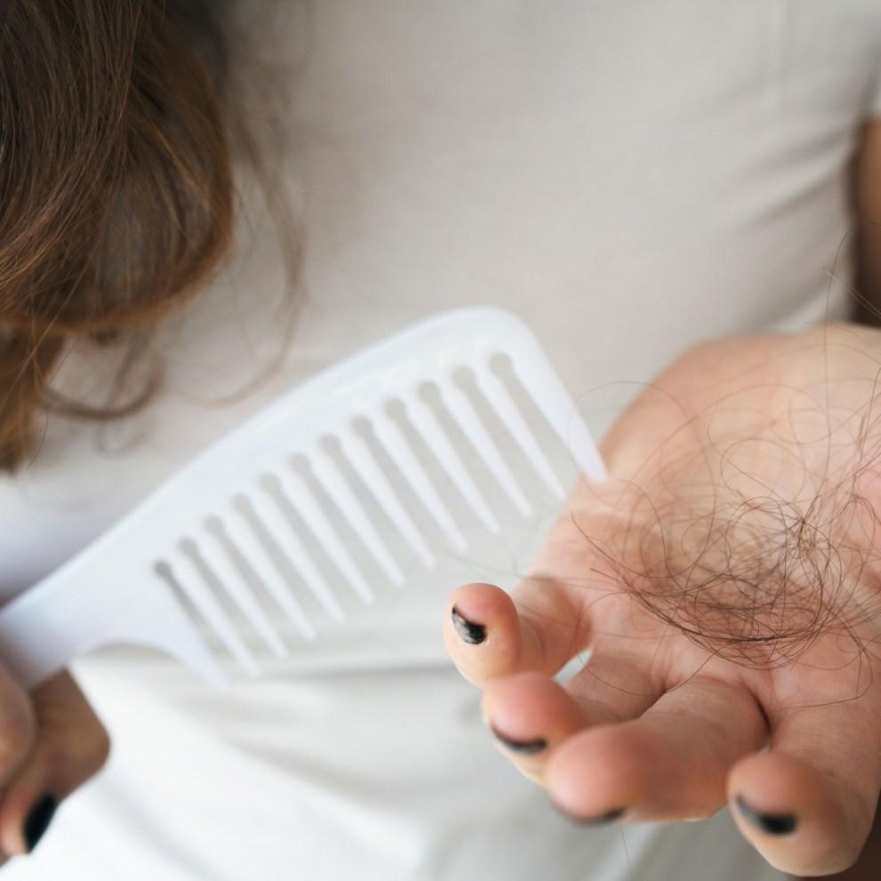 Μαλλιά που πέφτουν: Συμβουλές για να μειώσουμε την τριχόπτωση - Shape.gr
